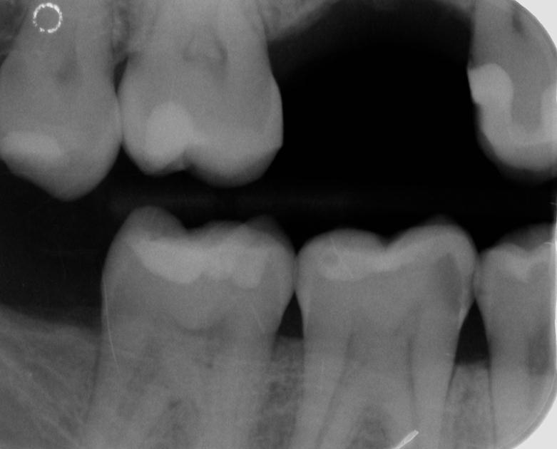 Abb. 6) Intraorale Bissflügel-Röntgenaufnahme: Kariöse Läsionen im vierten Quadranten