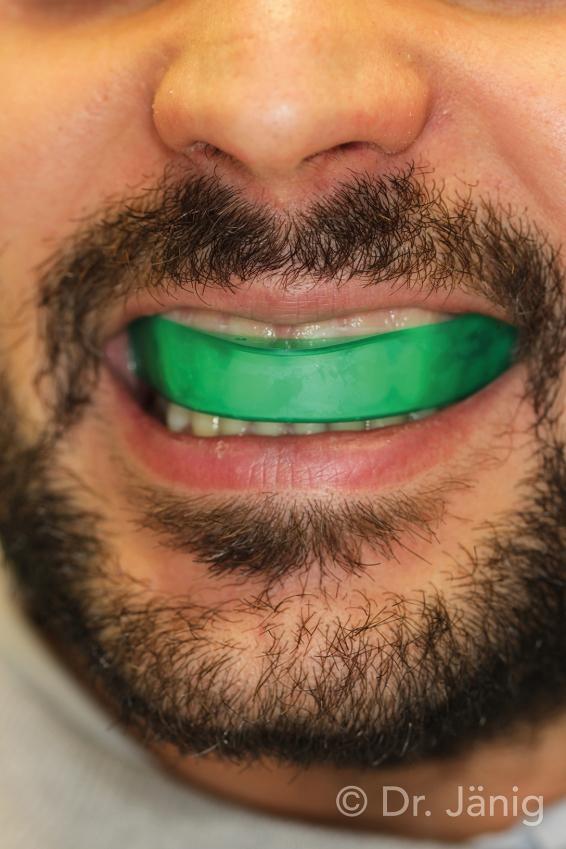 Fig.6_Placement of tray on upper dental arch_©Dr. Jänig